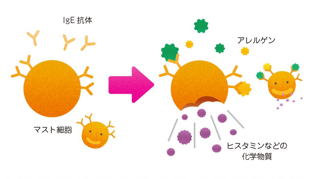 アレルギー,抗体反応,ヒスタミン