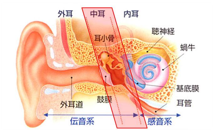 と は 中耳炎 こどもが中耳炎になった!中耳炎の種類と治療法|キャップスクリニック小児科・内科